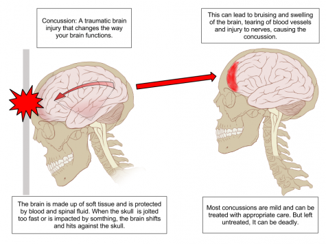 Anatomy of a concussed brain